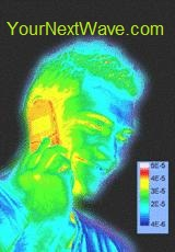 EMR Defender - Thermal Image Baseline