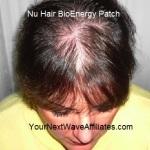 Nu Hair BioEnergy Patch